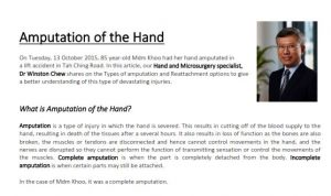 Amputation of the Hand