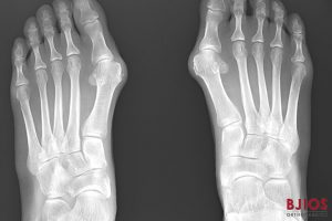 Suffering from Bunions? Here are Some of the Likely Culprits