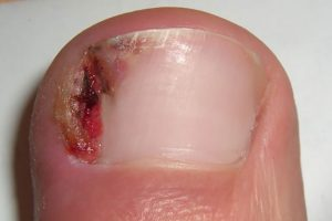 Prevalent Symptoms of Ingrown Toenail