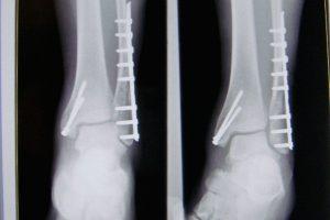 Trimalleolar Fracture Repair