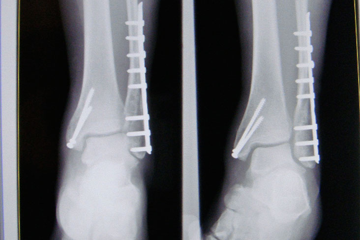 What are the Most Common Orthopaedic Disorders?