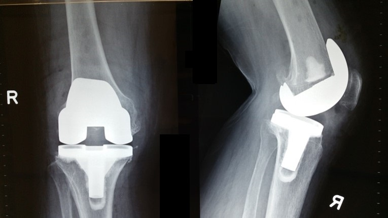 Bjios Knee Replacement