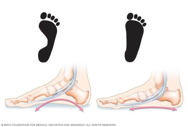 Flat Foot Surgery