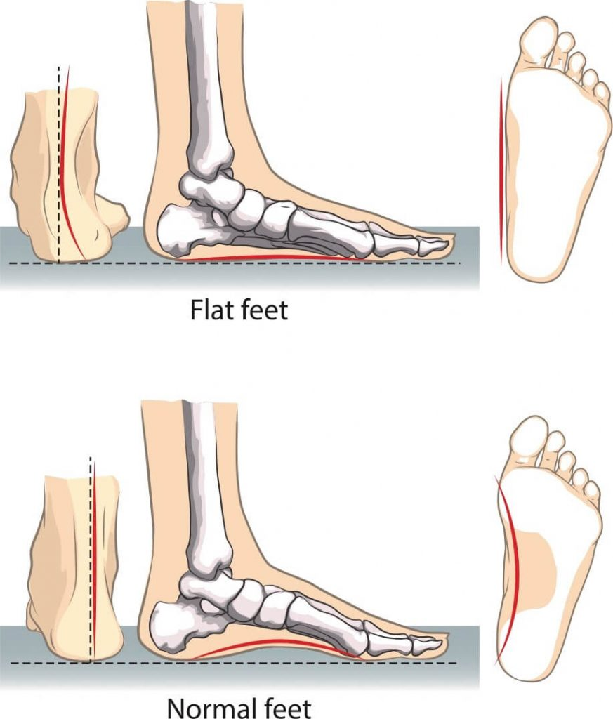 Bjios Flat Foot Surgery